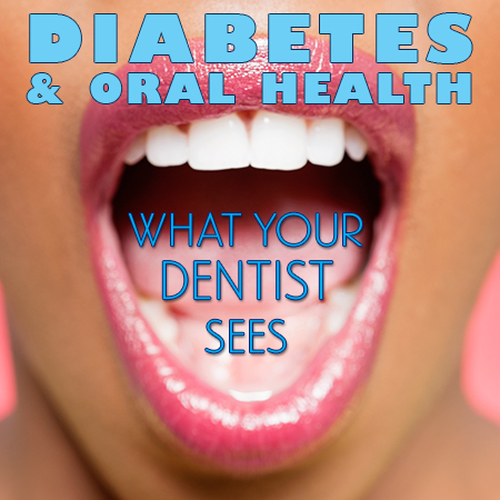 Dental and Diabetes