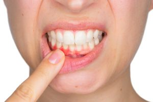 Why It's Not Normal for Your Gums to Bleed